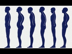 Examples of good and bad posture